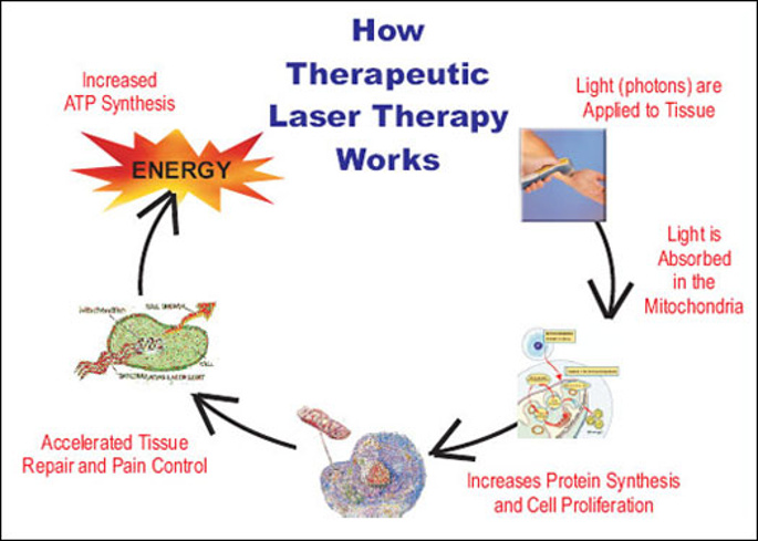 Cold Laser Therapy - how laser therapy works diagram