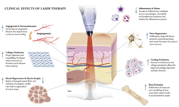 Cold Laser Therapy - effects of laser therapy diagram